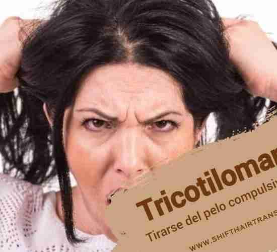 Tricotilomanía
