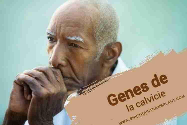 Genes de la calvicie,