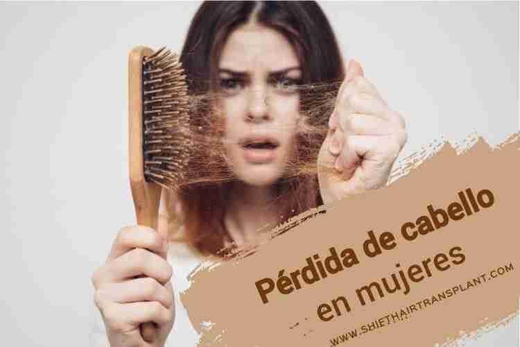 Pérdida de cabello en mujeres,