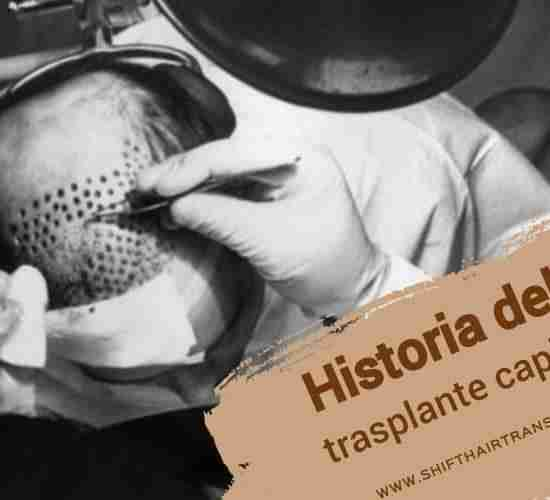 Historia del trasplante capilar,