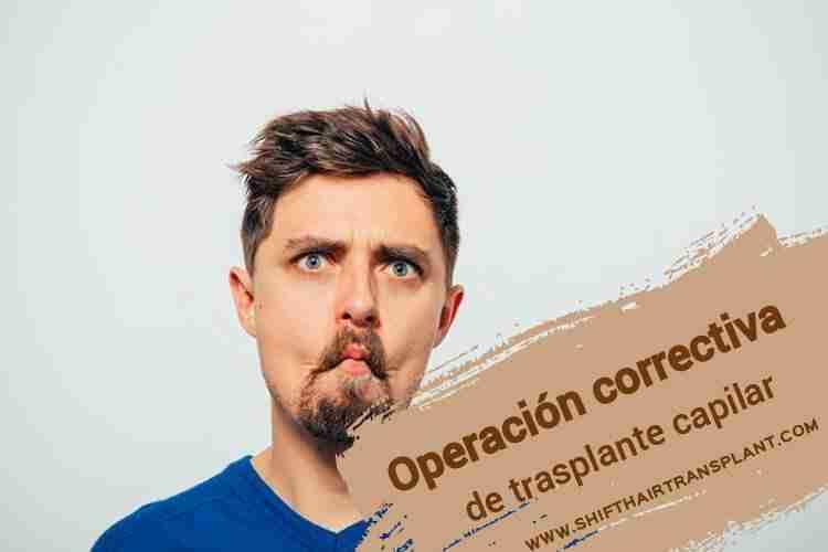 Operación correctiva de trasplante capilar en Estambul,