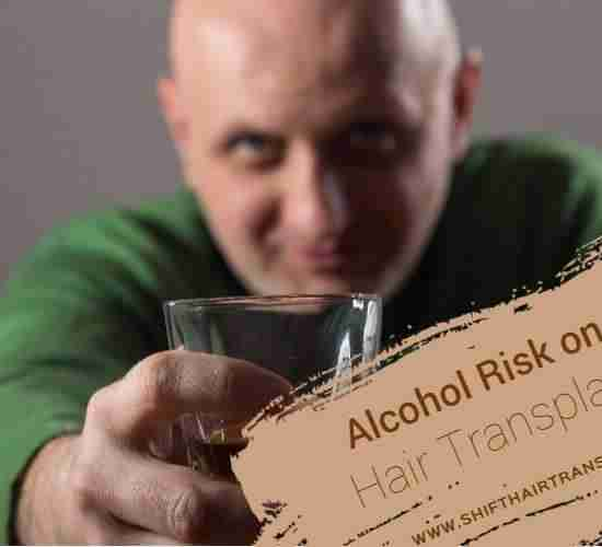 Hair Transplant Alcohol Risk, A bald man in green giving a toast-drinking Whiskey.