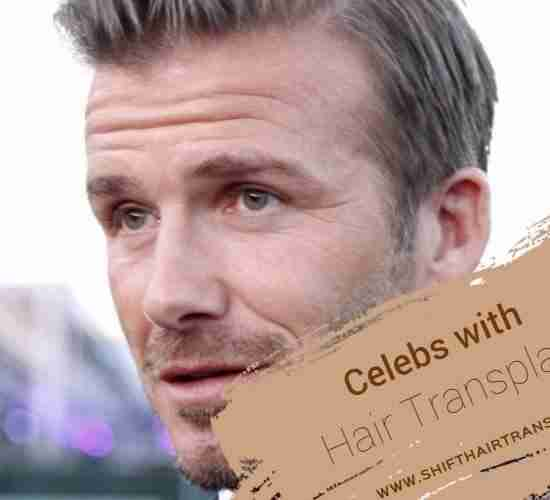 Celebrity Hair Transplant, David Beckham making a reportage in street.