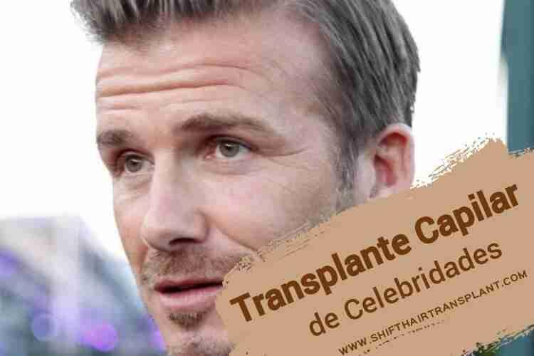 Transplante Capilar de Celebridades, David Beckham fazendo uma reportagem na rua.