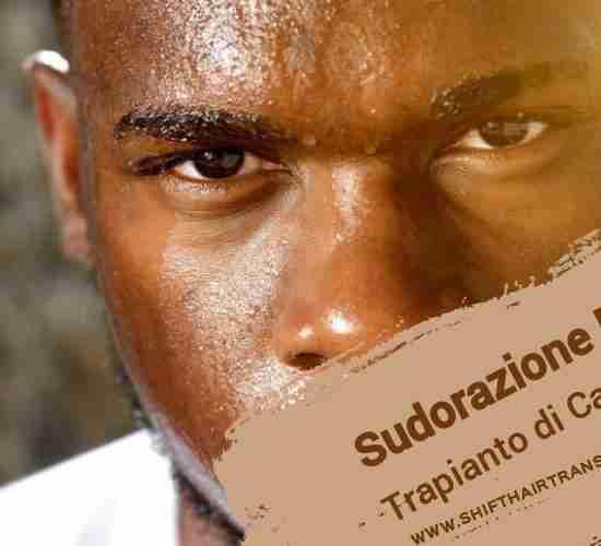 Sudorazione E Trapianto di Capelli,