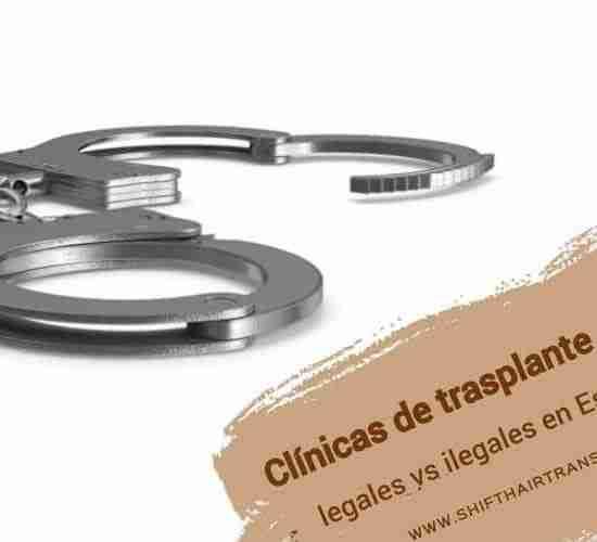 Clínicas de trasplante capilar legales vs ilegales en Estambul,