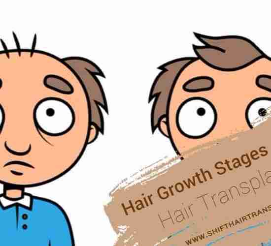 Hair Transplant Hair Growth Stages, Animation image for an old man before and after hair transplant.