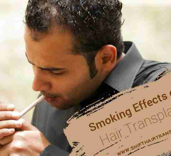 Hair Transplant Smoking Effects, A Middle Eastern bald guy in grey shirt lighting a cigarette.