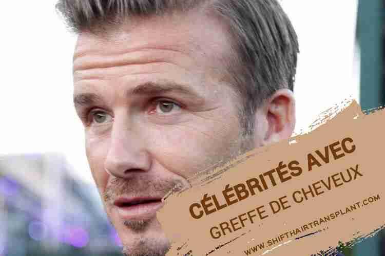Célébrités avec la greffe de cheveux, David Beckham faisant un reportage dans la rue.