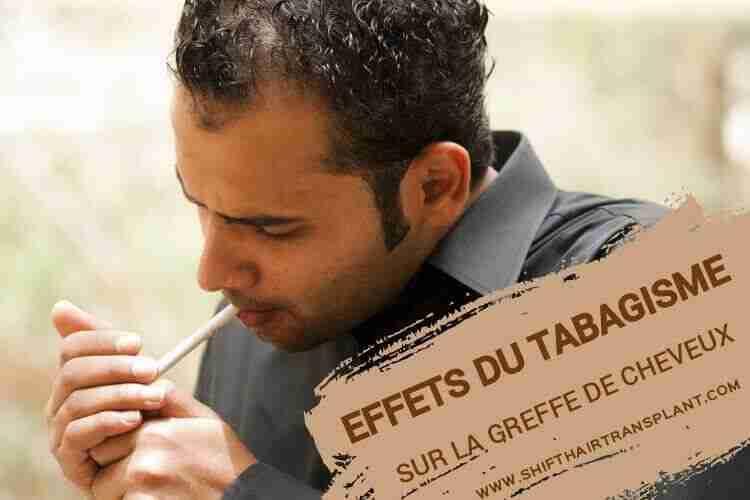 Effets du tabagisme sur la greffe de cheveux, Un gars chauve du Moyen-Orient en chemise grise allumant une cigarette.
