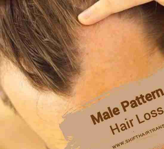 A man with male pattern hair loss.