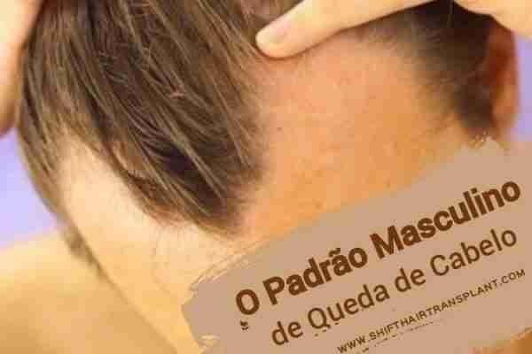 O Padrão Masculino de Queda de Cabelo, Um homem com perda de cabelo masculina do teste padrão.