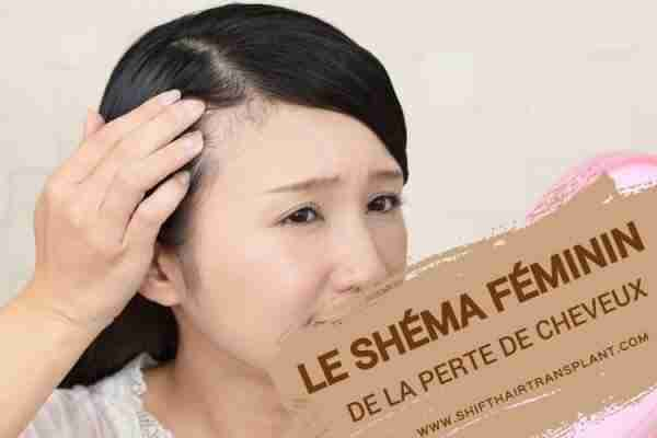 Le Schéma Féminin de la Perte de Cheveux, Une femme asiatique regardant ses cheveux manqués à travers le miroir de la main rose.