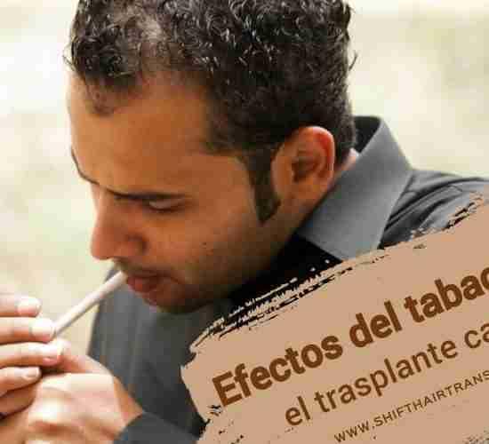 Efectos del tabaco en el trasplante capilar, Un tipo calvo de Oriente Medio en camisa gris enciende un cigarrillo.