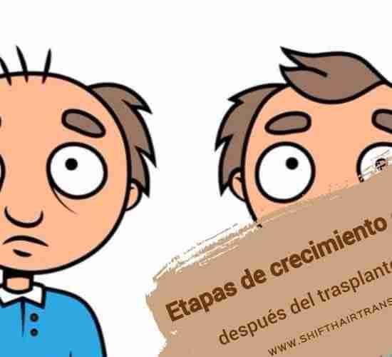 Etapas de crecimiento capilar después del trasplante capilar, Imagen de animación para un anciano antes y después del trasplante de cabello.