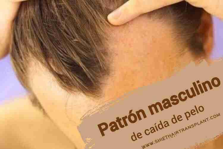 Patrón masculino de caída de pelo, Calvicie de patrón masculino, un hombre con pérdida de cabello de patrón masculino.
