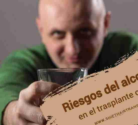 Riesgos del alcohol en el trasplante capilar, Un hombre calvo en verde dando un brindis bebiendo whisky.