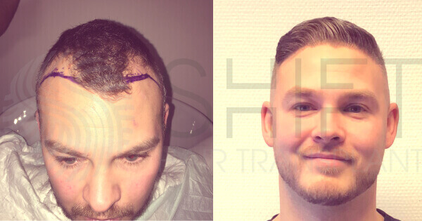 A Scandinavian male before and after his hair transplant.