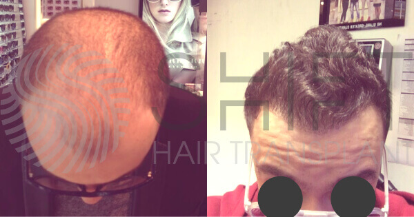 Hair Transplant Before and After SHIFT Istanbul Turkey 21