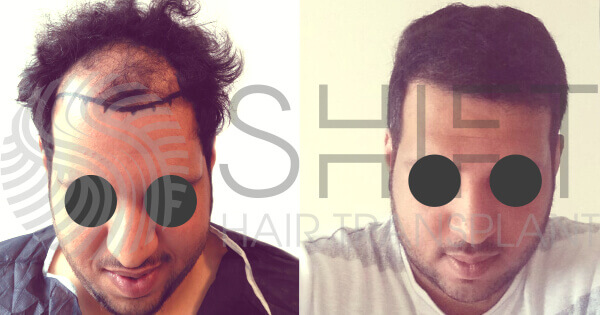 Hair Transplant Before and After SHIFT Istanbul Turkey 3