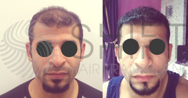 Hair Transplant Before and After SHIFT Istanbul Turkey 4