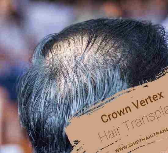 Crown Vertex Hair Transplant in Turkey, an empty hair on the vertex on a male in black hair.