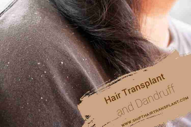 Dandruff Hair Transplant, a shoulder of a brunette with a lot of dandruff.