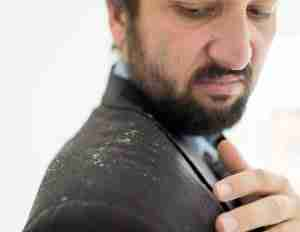 A shoulder of a man with a lot of dandruff.