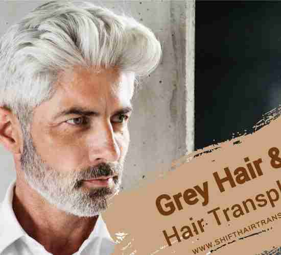 Grey Hair Transplant, a handsome man with grey hair