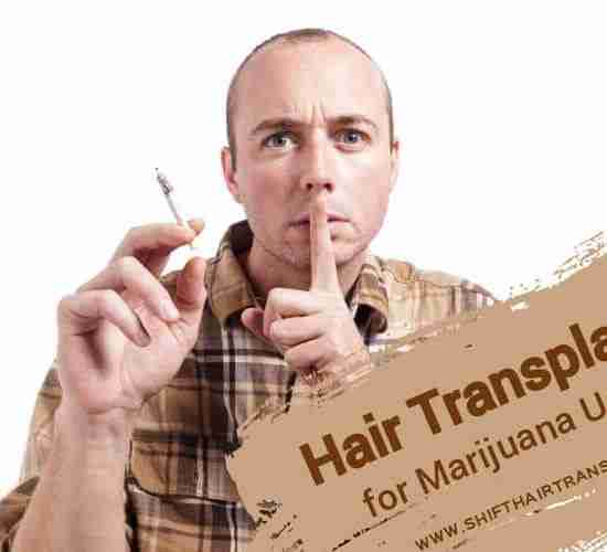 Hair Transplant Smoking Cannabis, a man smoking weed secretly on a white background.