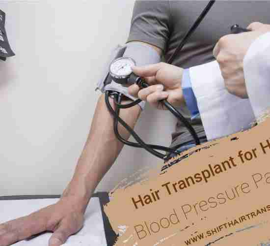 Hypertension Patients Hair Transplant