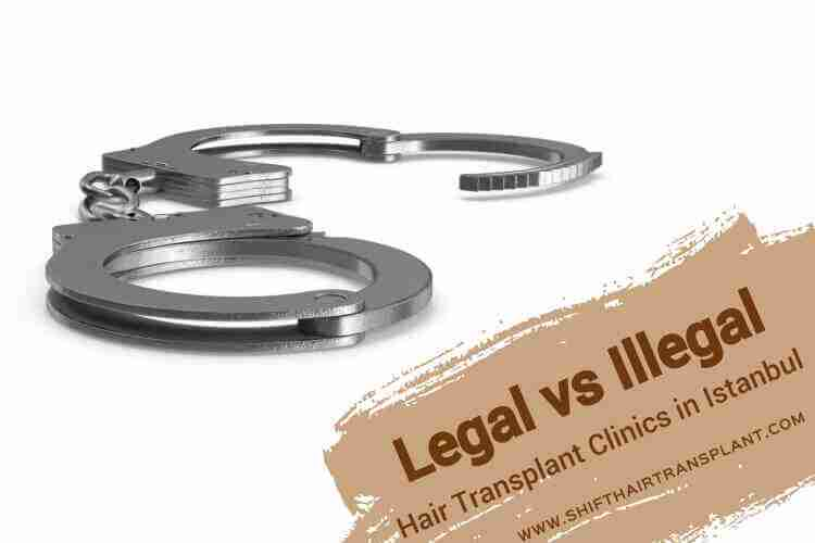 Legal Hair Transplant Clinics, a handcuff on a white background.