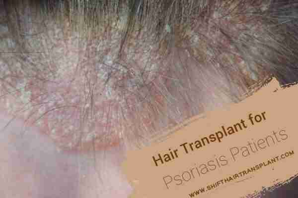 Psoriasis Hair Transplant, a scalp with Psoriasis.