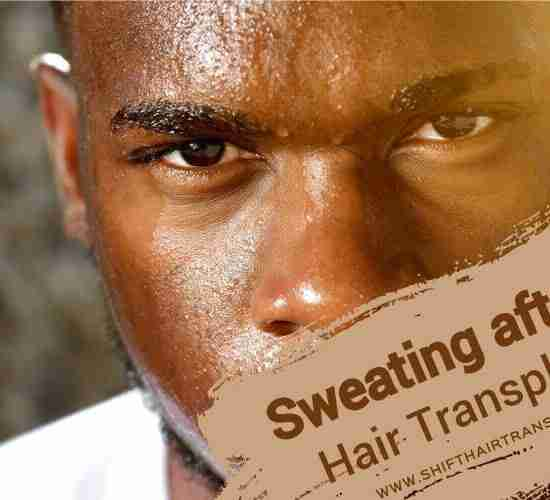 Hair Transplant Sweating, a black man with a sweating face.