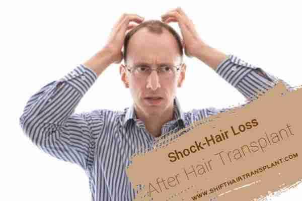 Hair Transplant Shock Loss 1