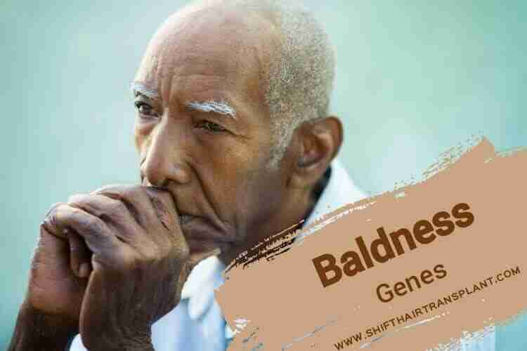 Baldness Genes, an original tan old man on a turquoise background.