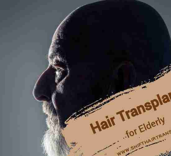 Elderly Hair Transplant, a profile of an old male with goatee.