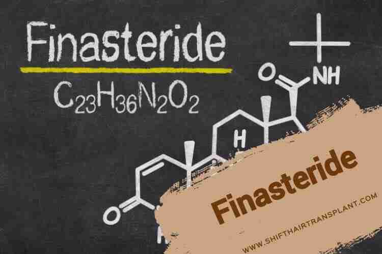 Finasteride, the chemical formula of Finasteride.