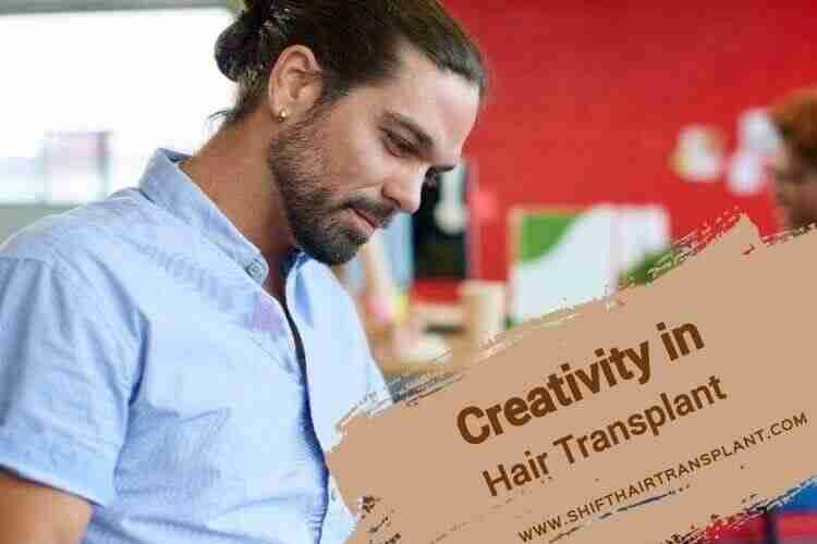 Hair Transplant Creativity, a bearded male in a blue shirt.