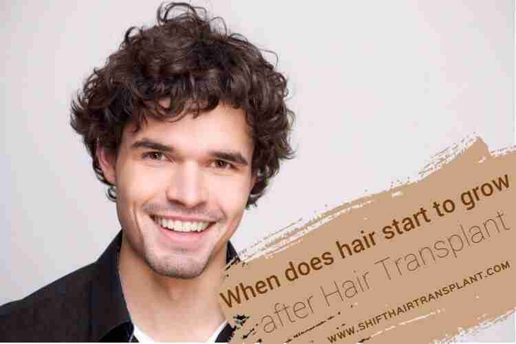 Hair Transplant Hair Growth, a man with a fluffy hair smiling on a white background.