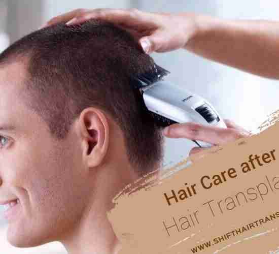 Hair Transplant Haircare, a Caucasian man getting his hair trimmed on a white background.