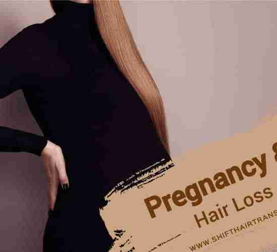 Pregnancy Hair Loss, a pregnant redhead wearing black on a light purple background.