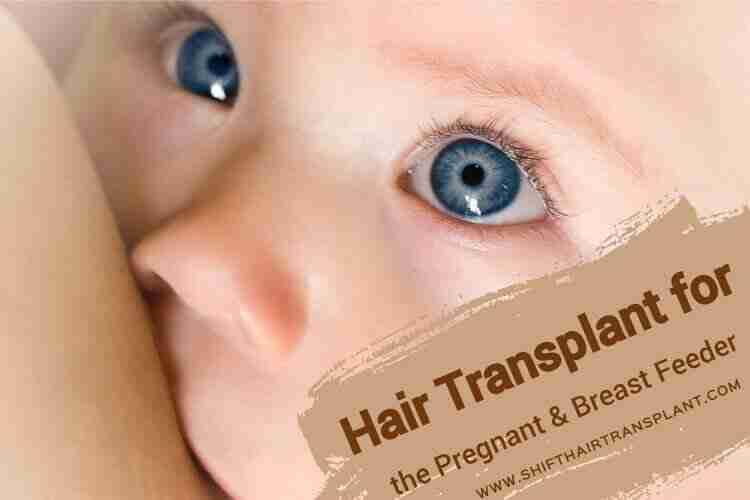 Pregnant BreastfeederHair Transplant