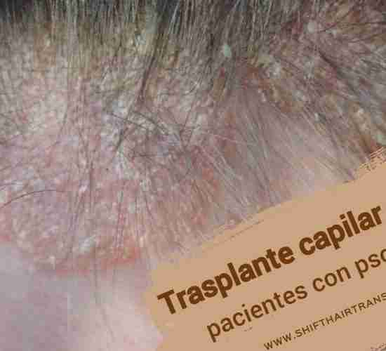 Trasplante capilar para pacientes con psoriasis, imagen principal del artículo del blog.