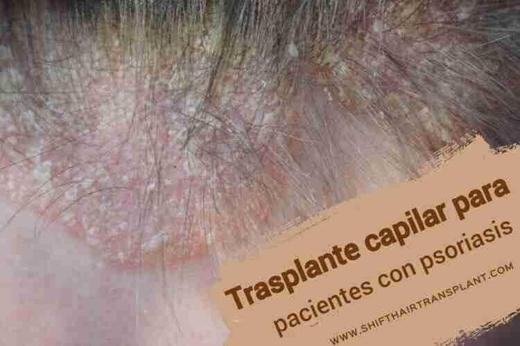 Trasplante capilar para pacientes con psoriasis,