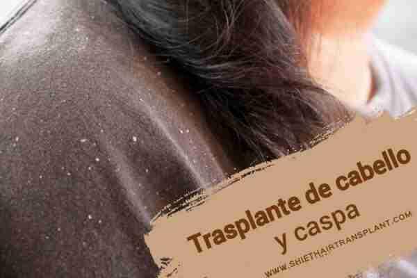 Trasplante de cabello y caspa, imagen principal del artículo del blog.