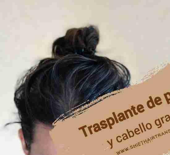 Trasplante de pelo y cabello graso 4