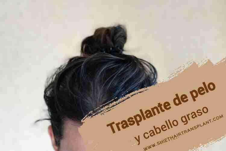 Trasplante de pelo y cabello graso 3