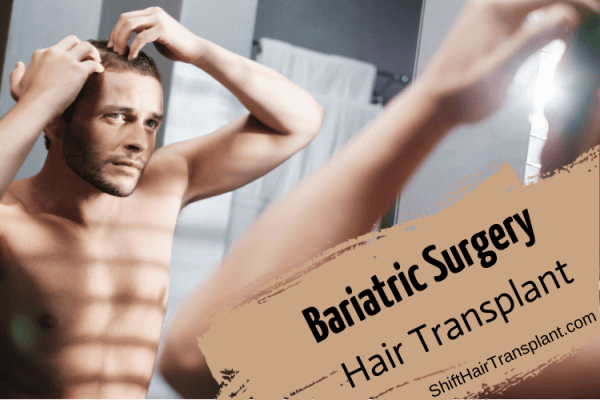 Bariatric Surgery Hair Transplant, A blonde man checking his falling hair against the mirror.