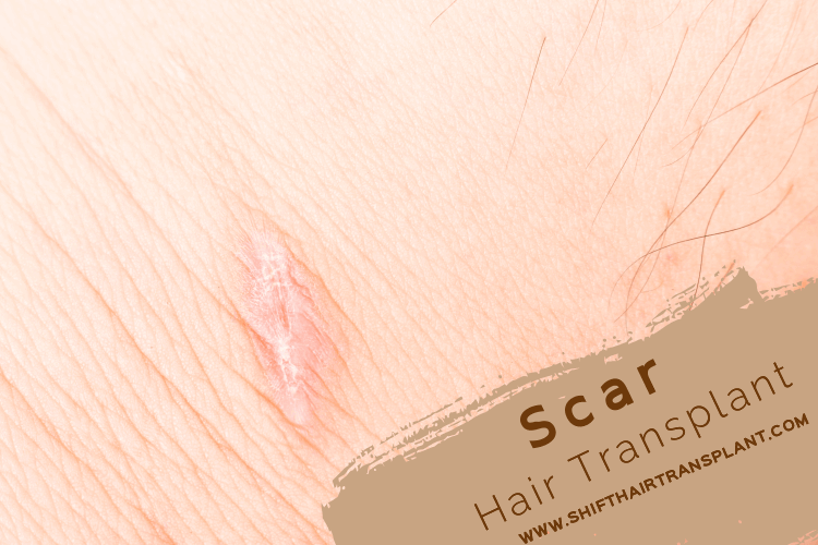 Scar Hair Transplant, a recovered scar on a skin.